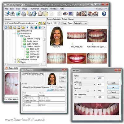 دانلود Photodontics Pro نرم افزار دندانپزشکی